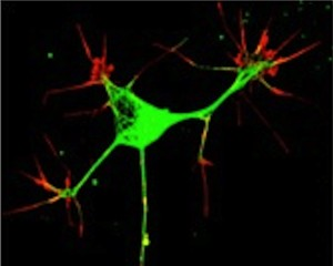 neuronal growth cones1