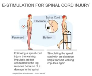 E-stimulation helps paralyzed spinal cord injury patients walk again