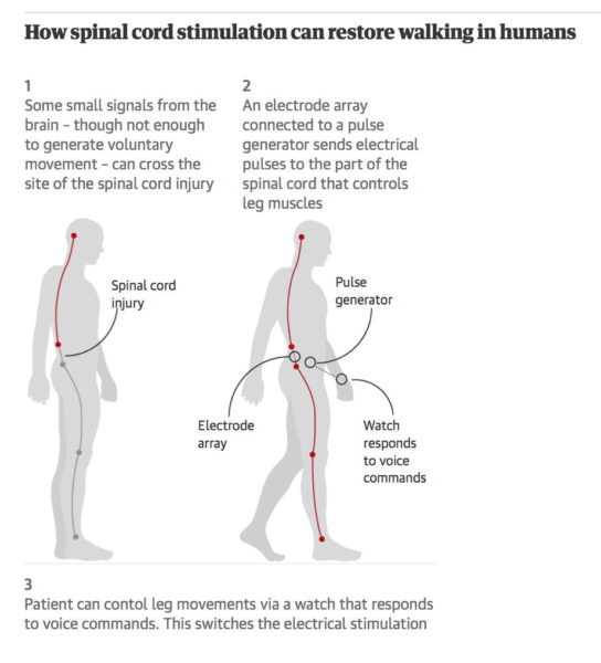 E-stimulation helps patients with incomplete spinal injury walk again